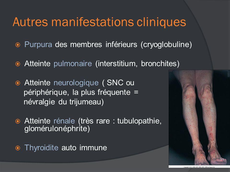 Autres manifestations cliniques  Purpura des membres inférieurs (cryoglobuline)  Atteinte pulmonaire (interstitium, bronchites)  Atteinte neurologique ( SNC ou périphérique, la plus fréquente = névralgie du trijumeau)  Atteinte rénale (très rare : tubulopathie, glomérulonéphrite)  Thyroidite auto immune