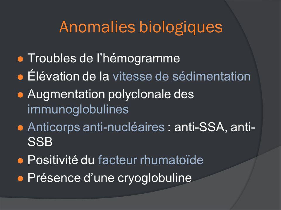 Anomalies biologiques  Troubles de l'hémogramme  Élévation de la vitesse de sédimentation  Augmentation polyclonale des immunoglobulines  Anticorps anti-nucléaires : anti-SSA, anti- SSB  Positivité du facteur rhumatoïde  Présence d'une cryoglobuline