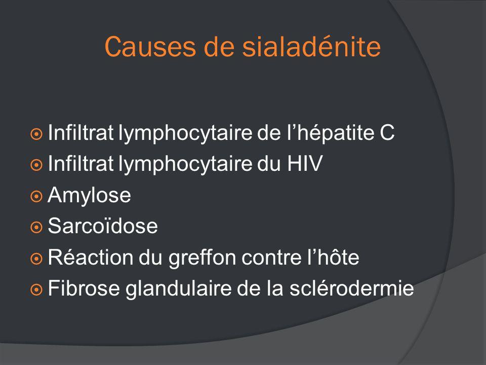 Causes de sialadénite  Infiltrat lymphocytaire de l'hépatite C  Infiltrat lymphocytaire du HIV  Amylose  Sarcoïdose  Réaction du greffon contre l'hôte  Fibrose glandulaire de la sclérodermie