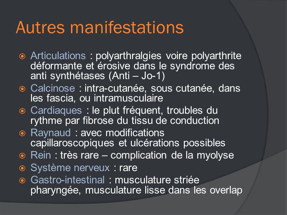 Autres manifestations  Articulations : polyarthralgies voire polyarthrite déformante et érosive dans le syndrome des anti synthétases (Anti – Jo-1)  Calcinose : intra-cutanée, sous cutanée, dans les fascia, ou intramusculaire  Cardiaques : le plut fréquent, troubles du rythme par fibrose du tissu de conduction  Raynaud : avec modifications capillaroscopiques et ulcérations possibles  Rein : très rare – complication de la myolyse  Système nerveux : rare  Gastro-intestinal : musculature striée pharyngée, musculature lisse dans les overlap