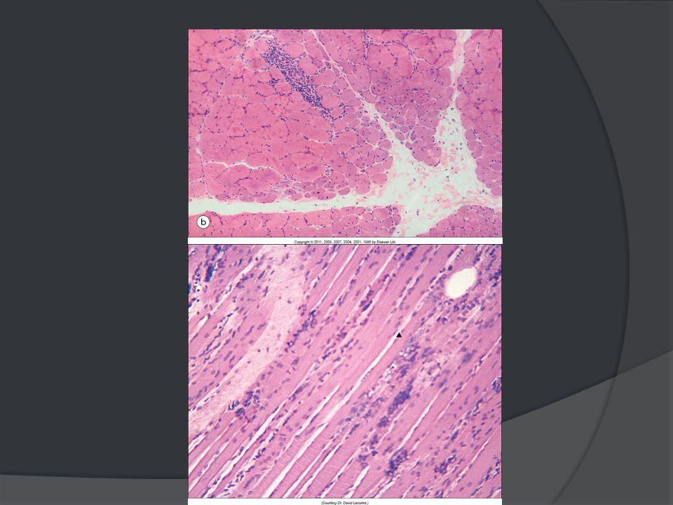 Diagnostic différentiel  Causes non neuro-musculaires de faiblesse :  hypotension, hypoglycémie, déficience cardiaque, stress, anémie,…  Autres causes de faiblesse musculaire :  Myopathies métaboliques, endocriniennes, toxiques, glycogénoses  Dystrophies musculaires congénitales  Dénervation, atteinte de la jonction neuromusculaire  Infections, parasites, myosite septique  Autre connectivite