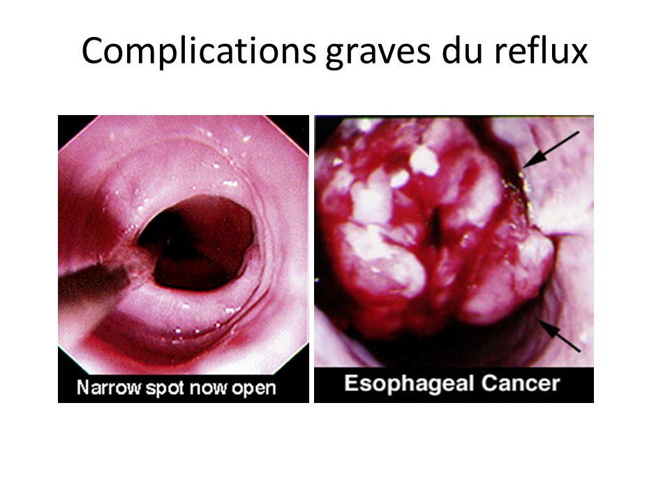 Complications graves du reflux