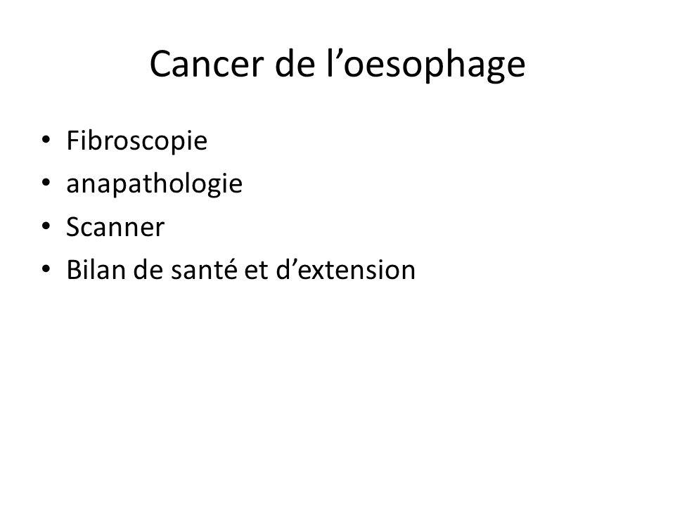 Cancer de l'oesophage Fibroscopie anapathologie Scanner Bilan de santé et d'extension