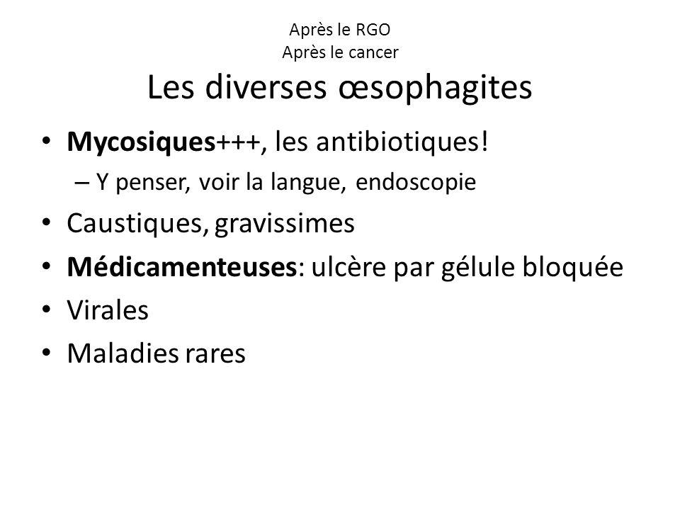 Après le RGO Après le cancer Les diverses œsophagites Mycosiques+++, les antibiotiques! – Y penser, voir la langue, endoscopie Caustiques, gravissimes
