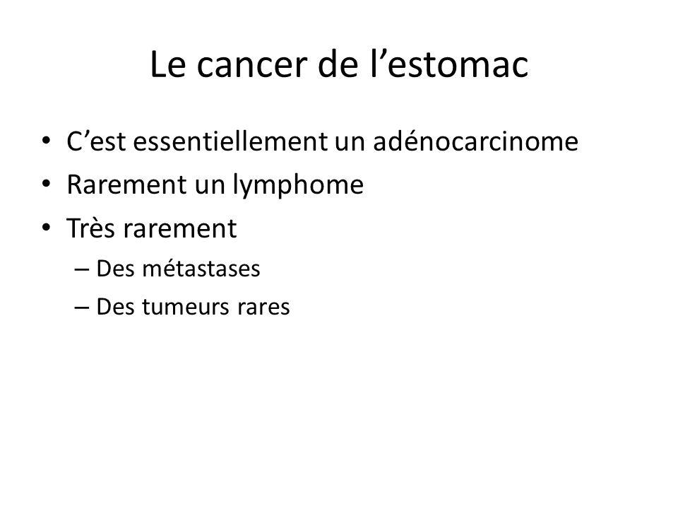 Le cancer de l'estomac C'est essentiellement un adénocarcinome Rarement un lymphome Très rarement – Des métastases – Des tumeurs rares