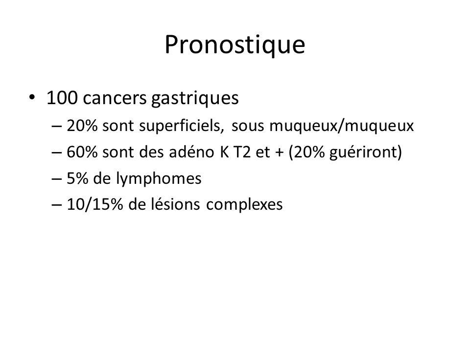 Pronostique 100 cancers gastriques – 20% sont superficiels, sous muqueux/muqueux – 60% sont des adéno K T2 et + (20% guériront) – 5% de lymphomes – 10