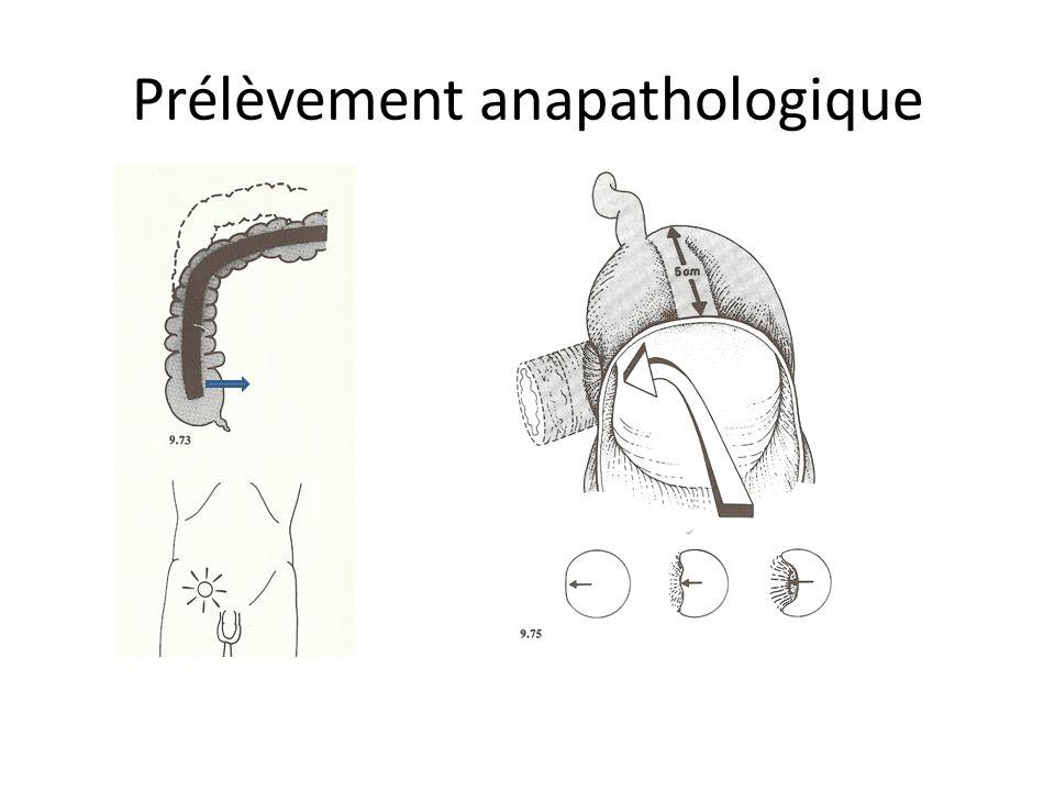Prélèvement anapathologique