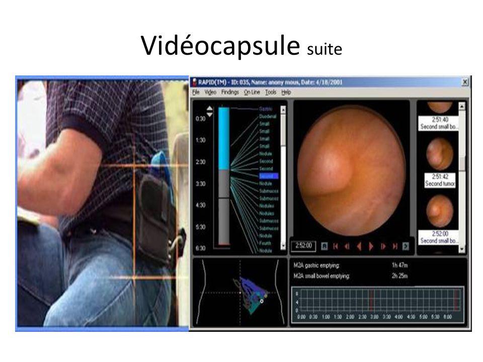 Vidéocapsule suite