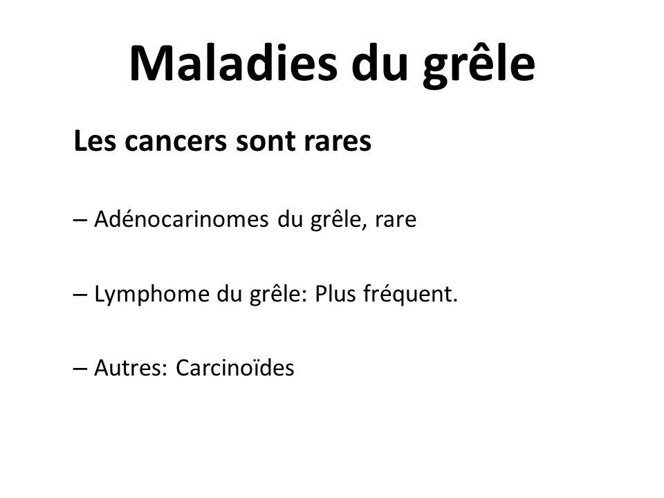 Maladies du grêle Les cancers sont rares – Adénocarinomes du grêle, rare – Lymphome du grêle: Plus fréquent. – Autres: Carcinoïdes