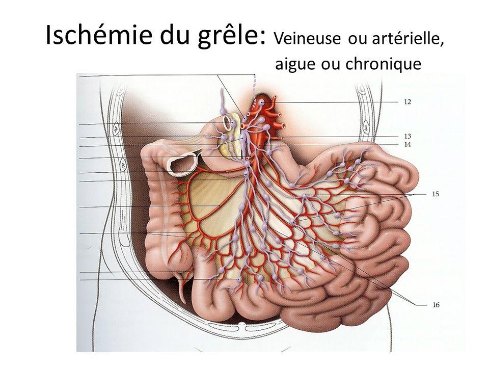 Ischémie du grêle: Veineuse ou artérielle, aigue ou chronique