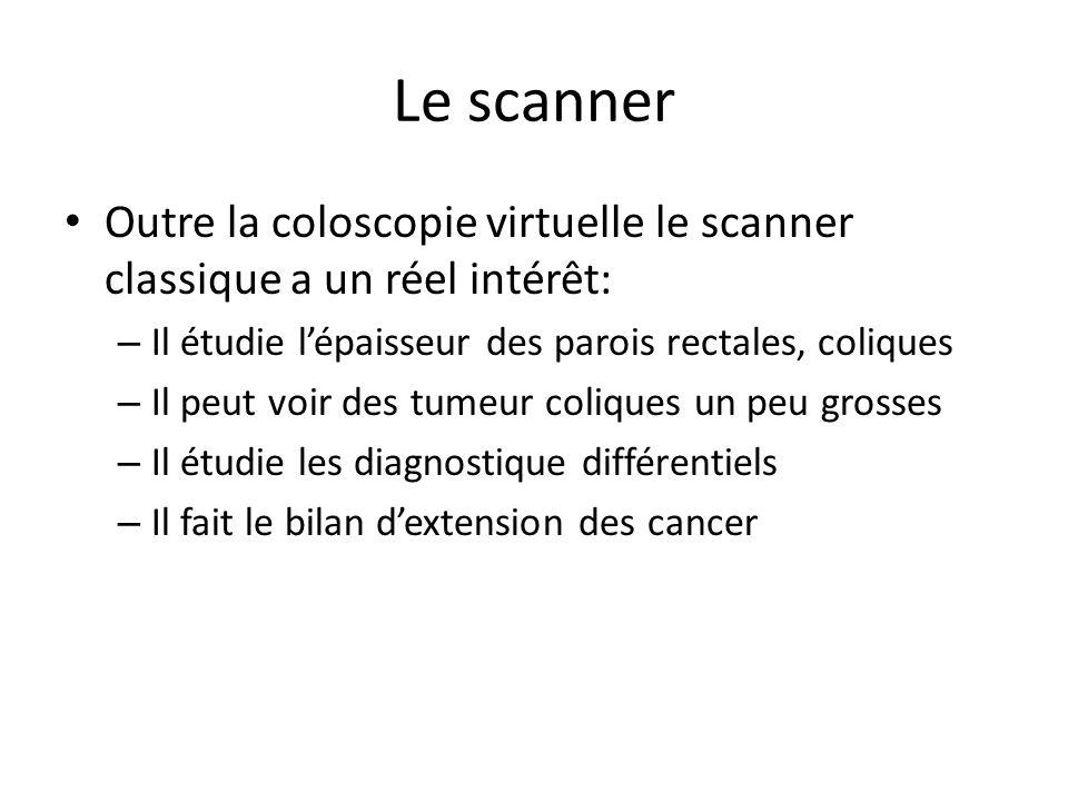 Le scanner Outre la coloscopie virtuelle le scanner classique a un réel intérêt: – Il étudie l'épaisseur des parois rectales, coliques – Il peut voir