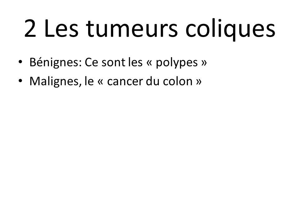2 Les tumeurs coliques Bénignes: Ce sont les « polypes » Malignes, le « cancer du colon »