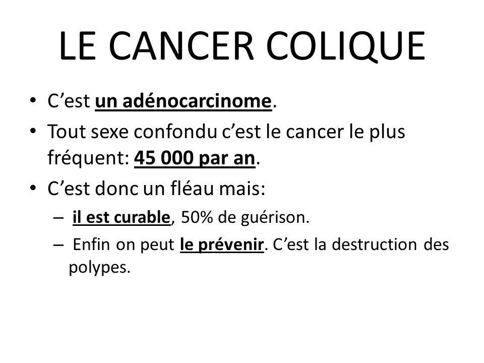 LE CANCER COLIQUE C'est un adénocarcinome. Tout sexe confondu c'est le cancer le plus fréquent: 45 000 par an. C'est donc un fléau mais: – il est cura