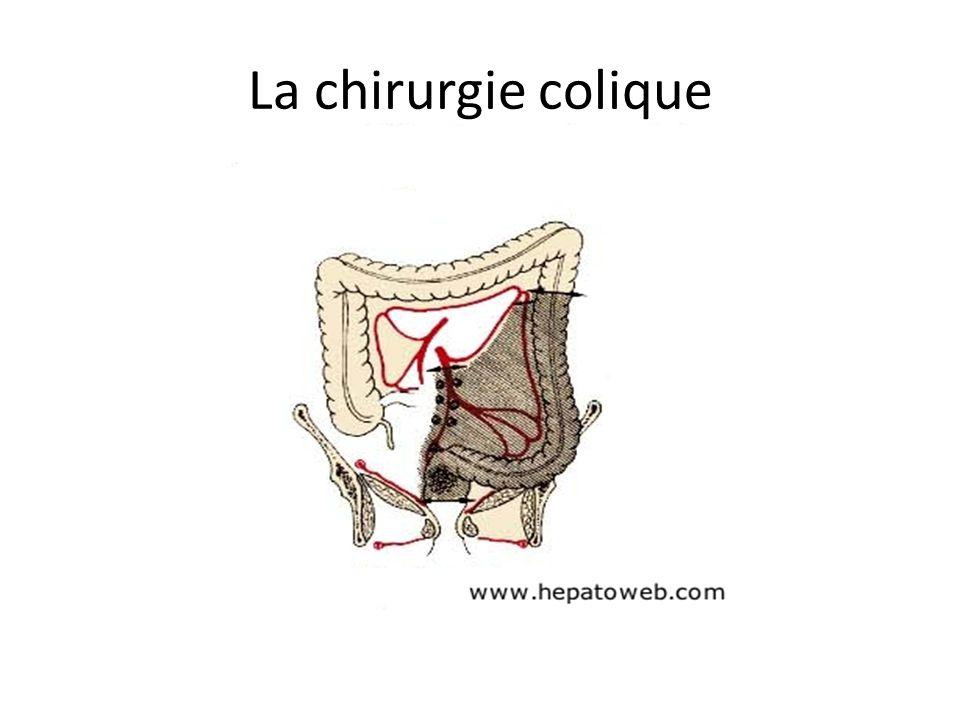 La chirurgie colique