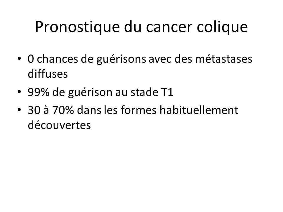 Pronostique du cancer colique 0 chances de guérisons avec des métastases diffuses 99% de guérison au stade T1 30 à 70% dans les formes habituellement