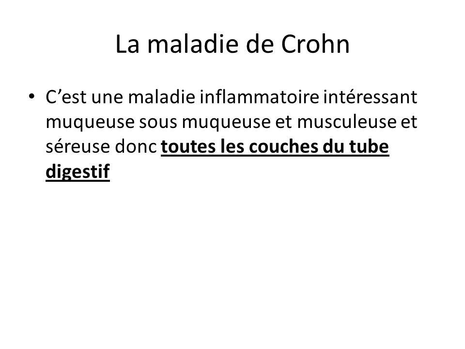 La maladie de Crohn C'est une maladie inflammatoire intéressant muqueuse sous muqueuse et musculeuse et séreuse donc toutes les couches du tube digest