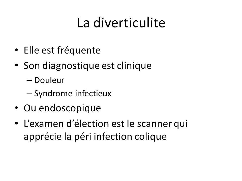 La diverticulite Elle est fréquente Son diagnostique est clinique – Douleur – Syndrome infectieux Ou endoscopique L'examen d'élection est le scanner q