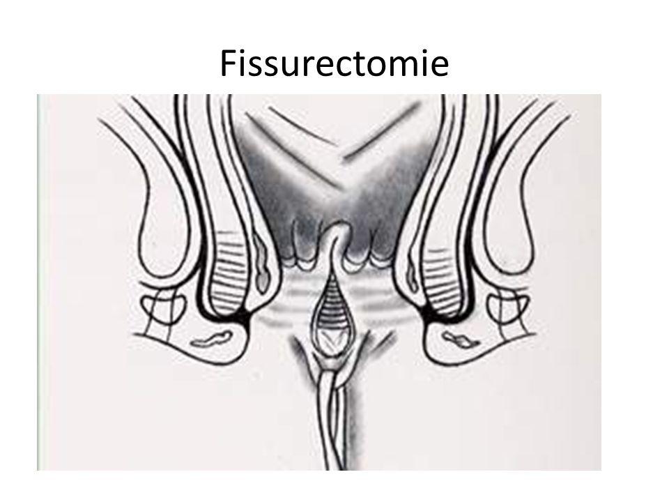 Fissurectomie