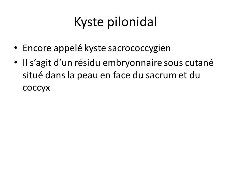 Kyste pilonidal Encore appelé kyste sacrococcygien Il s'agit d'un résidu embryonnaire sous cutané situé dans la peau en face du sacrum et du coccyx