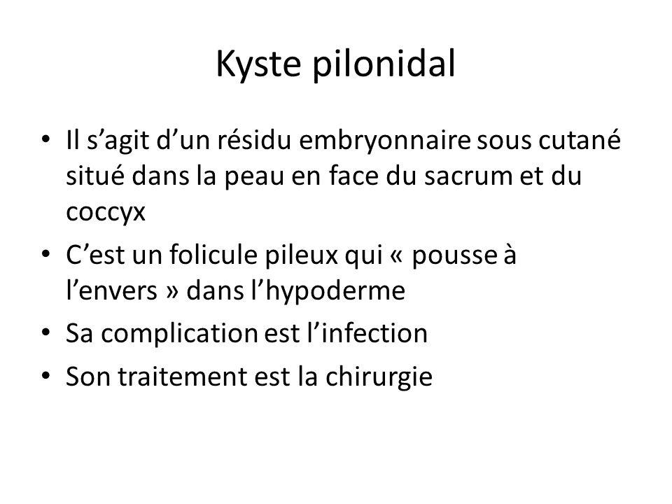 Kyste pilonidal Il s'agit d'un résidu embryonnaire sous cutané situé dans la peau en face du sacrum et du coccyx C'est un folicule pileux qui « pousse