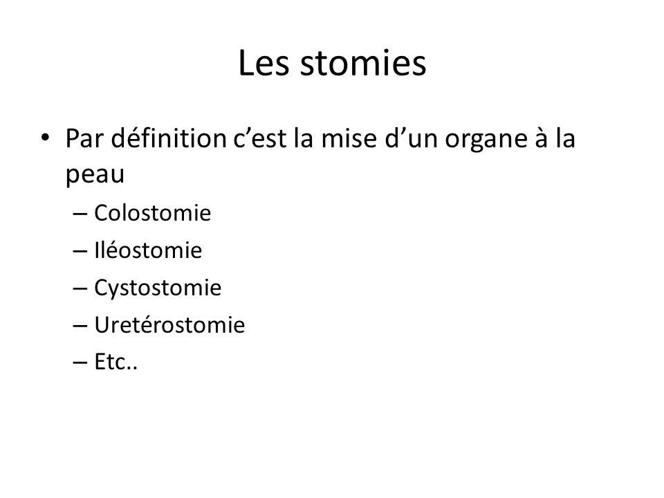 Les stomies Par définition c'est la mise d'un organe à la peau – Colostomie – Iléostomie – Cystostomie – Uretérostomie – Etc..