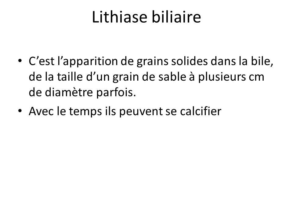 Lithiase biliaire C'est l'apparition de grains solides dans la bile, de la taille d'un grain de sable à plusieurs cm de diamètre parfois. Avec le temp