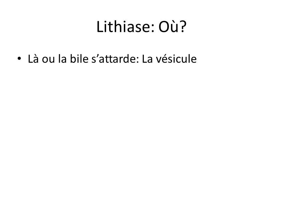 Lithiase: Où? Là ou la bile s'attarde: La vésicule