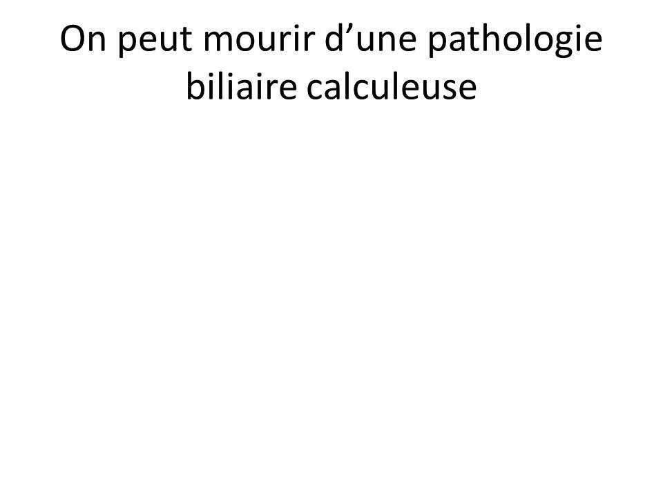 On peut mourir d'une pathologie biliaire calculeuse