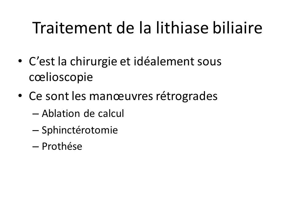 Traitement de la lithiase biliaire C'est la chirurgie et idéalement sous cœlioscopie Ce sont les manœuvres rétrogrades – Ablation de calcul – Sphincté
