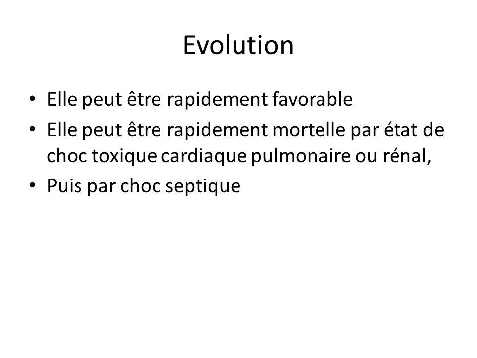 Evolution Elle peut être rapidement favorable Elle peut être rapidement mortelle par état de choc toxique cardiaque pulmonaire ou rénal, Puis par choc