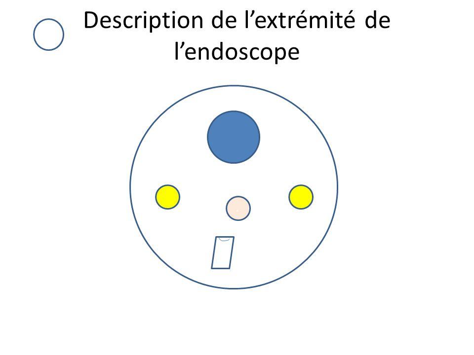 Description de l'extrémité de l'endoscope.