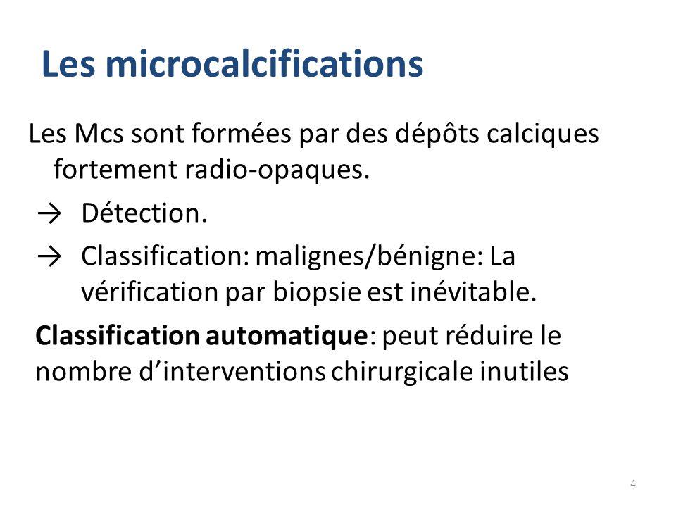 Les microcalcifications Les Mcs sont formées par des dépôts calciques fortement radio-opaques. →Détection. →Classification: malignes/bénigne: La vérif