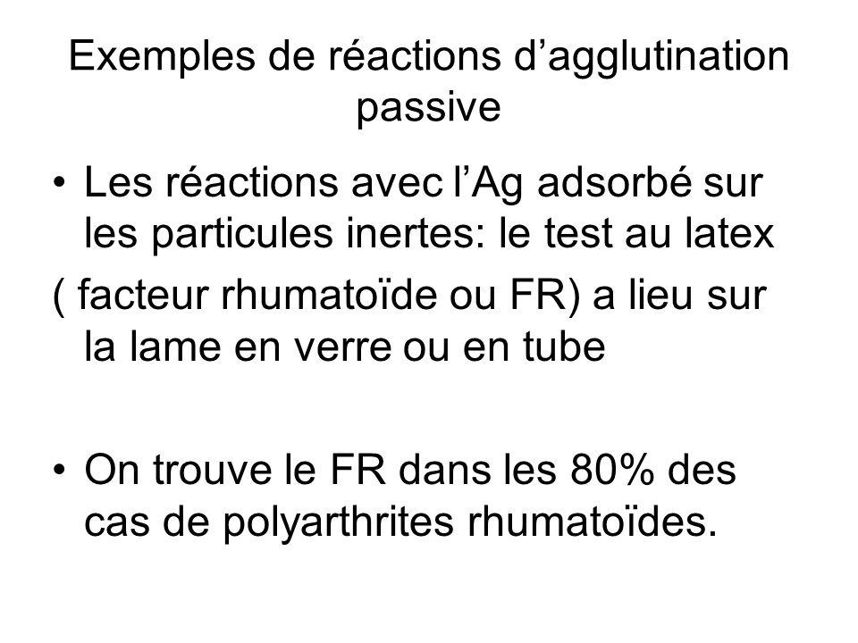 Exemples de réactions d'agglutination passive Les réactions avec l'Ag adsorbé sur les particules inertes: le test au latex ( facteur rhumatoïde ou FR)