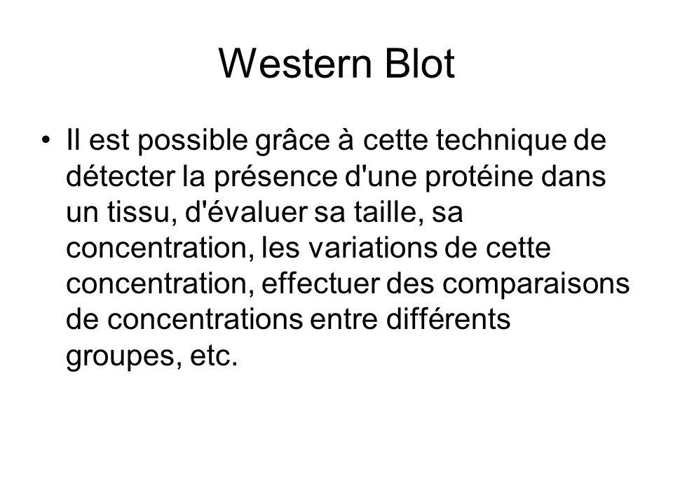 Western Blot Il est possible grâce à cette technique de détecter la présence d'une protéine dans un tissu, d'évaluer sa taille, sa concentration, les