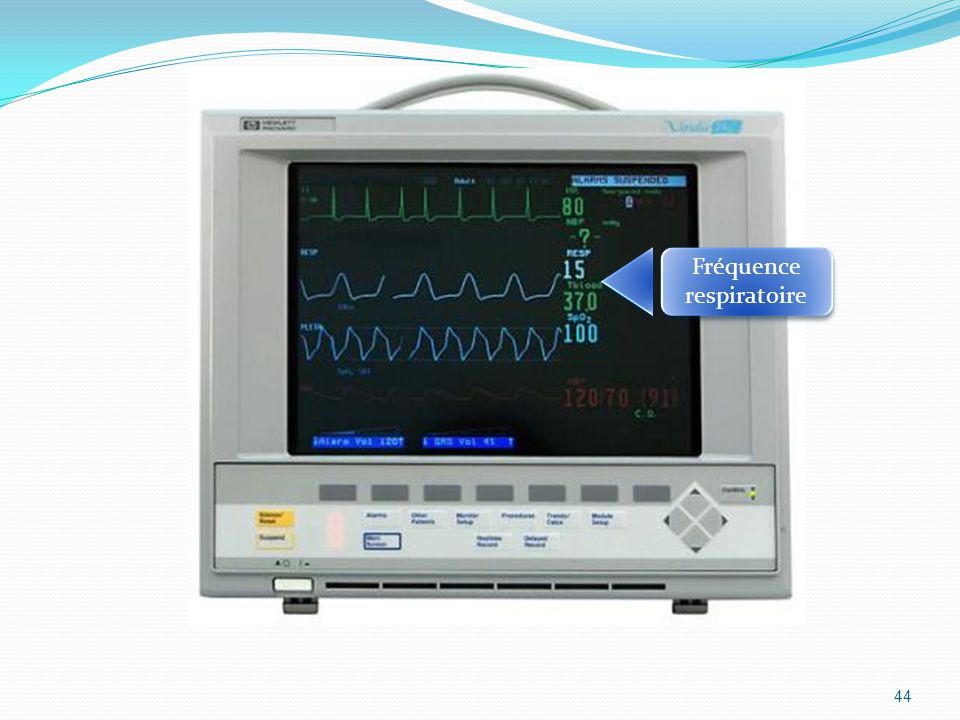 44 Fréquence respiratoire Fréquence respiratoire