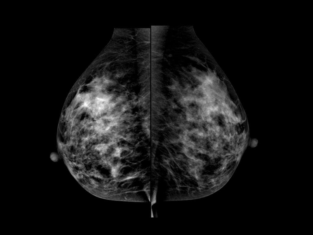 On retrouve sur le cliché mammographique de face à droite une masse stellaire de la jonction des quadrants supérieurs, le cliché en oblique externe est peu contributif.