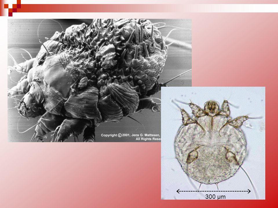A/La Gale : clinique / épidémiologie La transmission se fait essentiellement par les femelles adultes et très rarement par les formes larvaires.