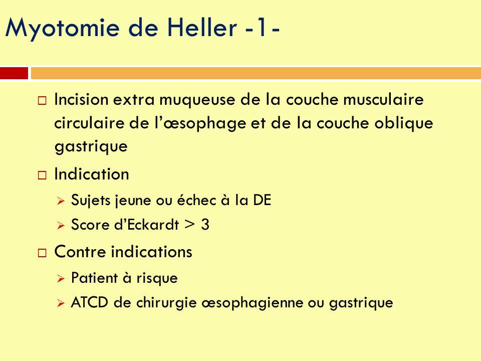 Myotomie de Heller -1-  Incision extra muqueuse de la couche musculaire circulaire de l'œsophage et de la couche oblique gastrique  Indication  Suj
