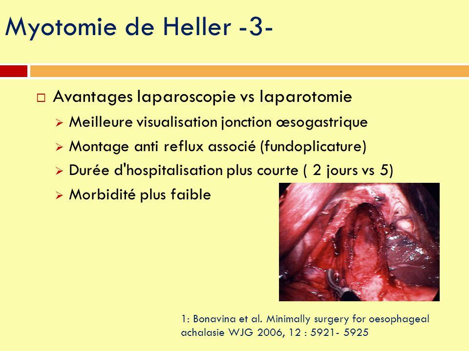  Avantages laparoscopie vs laparotomie  Meilleure visualisation jonction œsogastrique  Montage anti reflux associé (fundoplicature)  Durée d'hospi