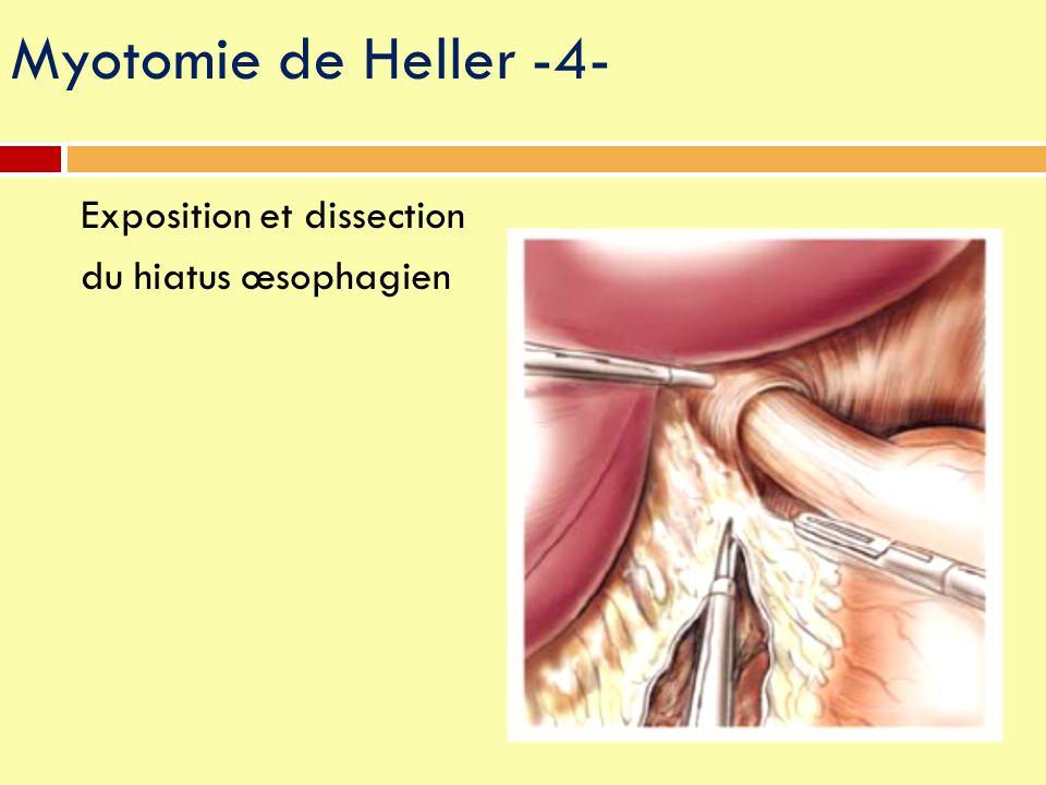 Myotomie de Heller -4- Exposition et dissection du hiatus œsophagien
