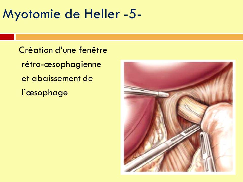 Création d'une fenêtre rétro-œsophagienne et abaissement de l'œsophage Myotomie de Heller -5-