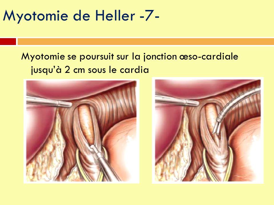 Myotomie se poursuit sur la jonction œso-cardiale jusqu'à 2 cm sous le cardia Myotomie de Heller -7-