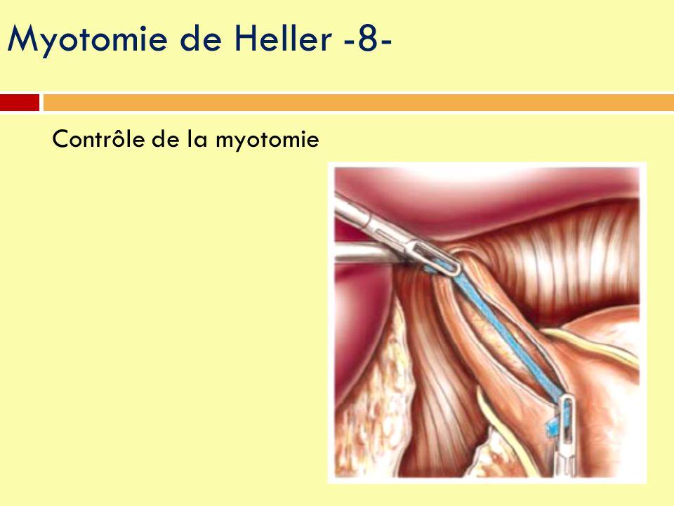 Contrôle de la myotomie Myotomie de Heller -8-