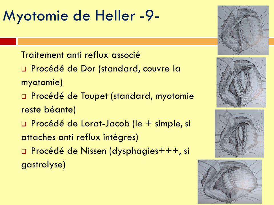 Traitement anti reflux associé  Procédé de Dor (standard, couvre la myotomie)  Procédé de Toupet (standard, myotomie reste béante)  Procédé de Lora