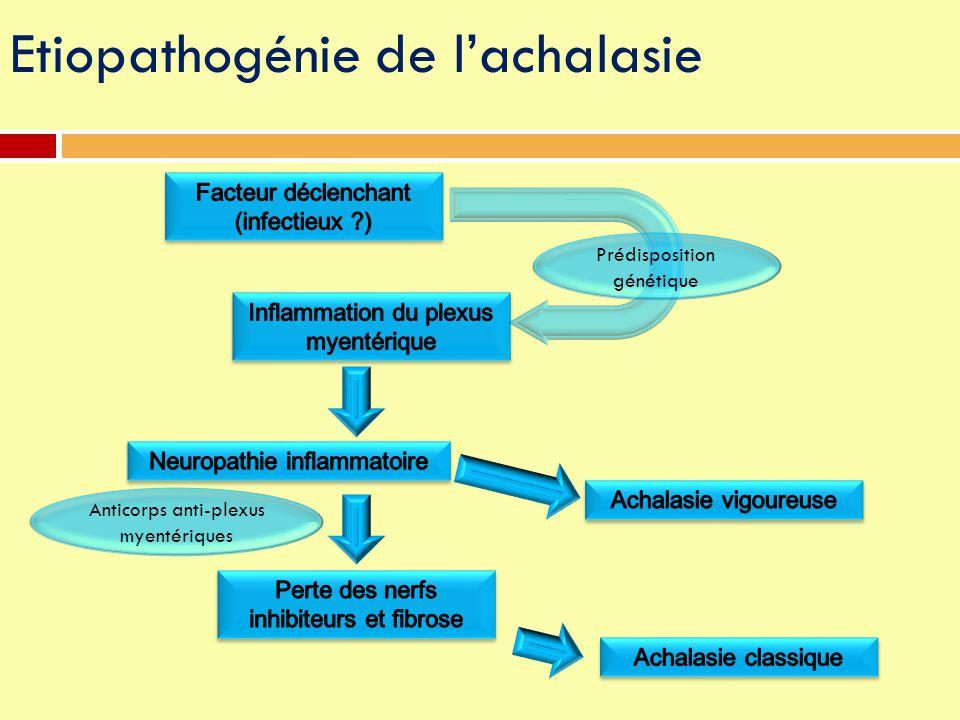 Etiopathogénie de l'achalasie Anticorps anti-plexus myentériques Prédisposition génétique