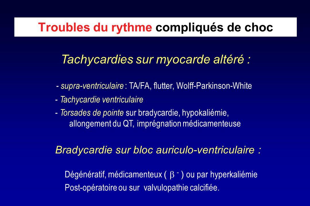 Bradycardie sur bloc auriculo-ventriculaire : Dégénératif, médicamenteux (  - ) ou par hyperkaliémie Post-opératoire ou sur valvulopathie calcifiée.