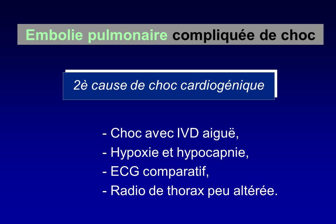 - Choc avec IVD aiguë, - Hypoxie et hypocapnie, - ECG comparatif, - Radio de thorax peu altérée. Embolie pulmonaire compliquée de choc 2è cause de cho