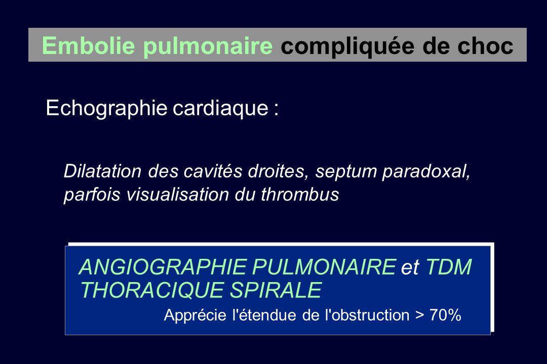 ANGIOGRAPHIE PULMONAIRE et TDM THORACIQUE SPIRALE Apprécie l'étendue de l'obstruction > 70% Embolie pulmonaire compliquée de choc Echographie cardiaqu