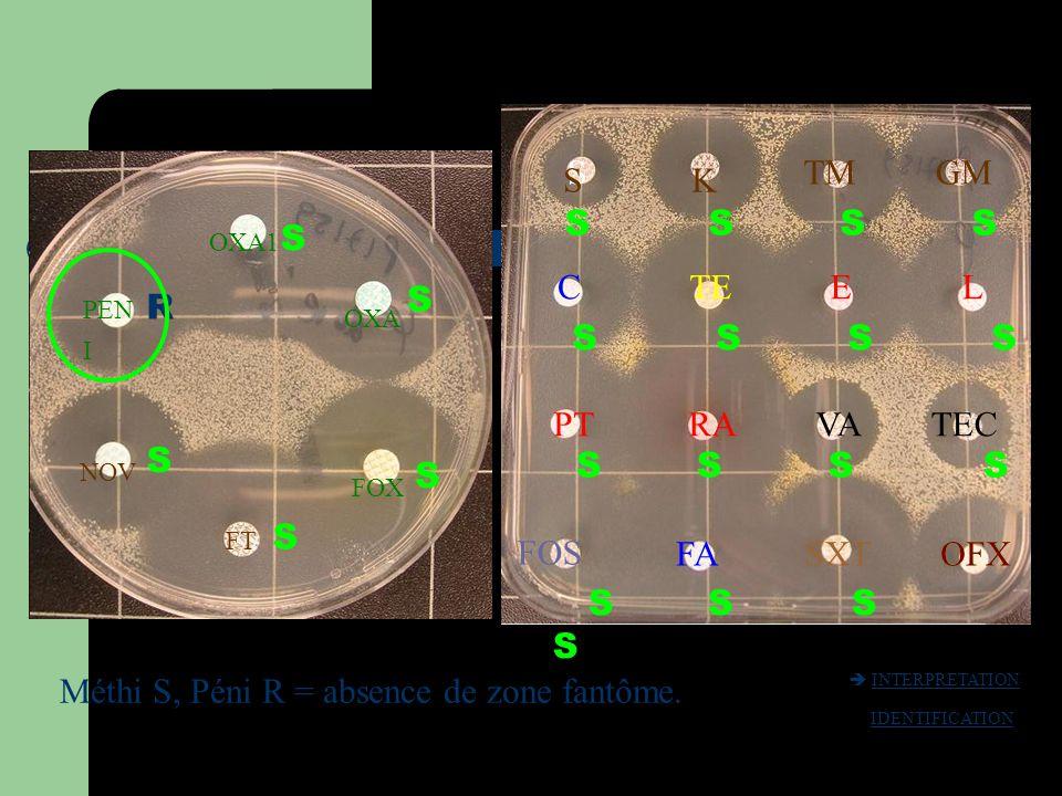 PEN I OXA1 OXA FOX FT NOV OFX R S S S S S S S S S S S S SK TMGM CTEEL PTRAVATEC FOS FASXTOFX Méthi S, Péni R = absence de zone fantôme.  INTERPRETATI