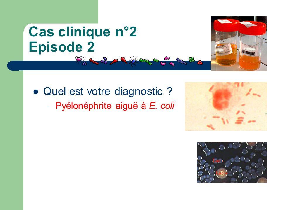 Cas clinique n°2 Episode 2 Quel est votre diagnostic ? - Pyélonéphrite aiguë à E. coli